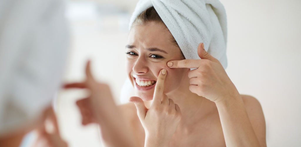 7 Surprising Causes of Adult Acne: Can Stress Make Acne Worse?